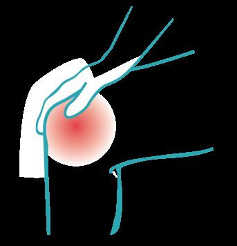 arthritic-pain